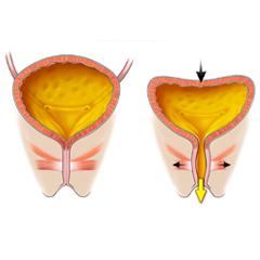 Bladder: Anatomy & Physiology Module