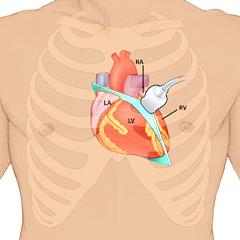 Heart: Anatomy & Physiology Module